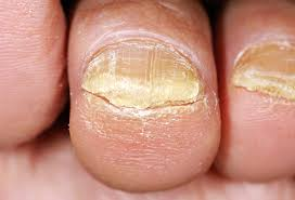toenail fungus pictures treatment causes symptoms and more