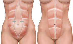 stomach muscles after c section women s health physiotherapy adelaide 5 things not to do with