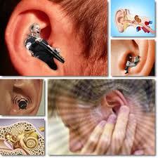 prurito interno orecchie ronzio e fischi orecchio acufene sintomi e cura vitamine proteine