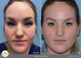 blue and red light therapy for acne reviews blue light therapy reviews archives lighting idea for your home