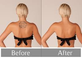 get the best sydney cbd laser tattoo sleeve removal light color