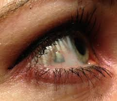 eye piercing rings images Don 39 t even go there jpg