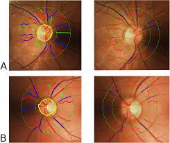 human vision u2013motivated algorithm allows consistent retinal vessel