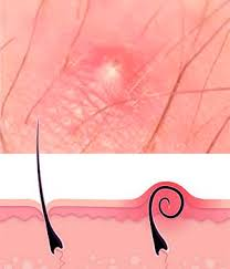 types of ingrown hair how can i know if my bumps are genital warts vs ingrown hair