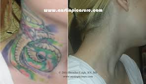 picosure laser tattoo removal before u0026 after pic austinpicosure