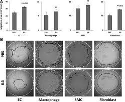 monocyte chemotactic protein 1 u2013interleukin 6 u2013osteopontin pathway