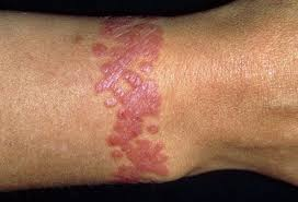 16 henna tattoo allergic reaction dangers of using black
