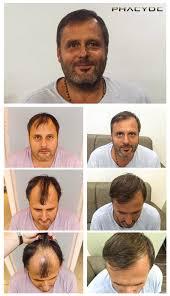 fue haircuts transplantacia vlasov fue vysledky pred po fotografie michael k