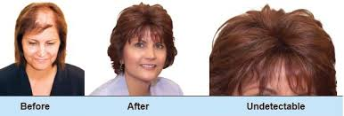 hair extensions for thinning bangs clip in extensions for thin hair on top triple weft hair extensions