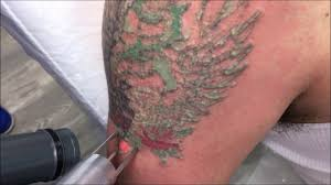does laser tattoo removal hurt skin deep laser services fairfax