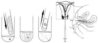 treating infertility ivf u0026 icsi bypass the infertility center