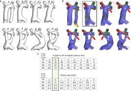 imaging for preintervention planning circulation cardiovascular