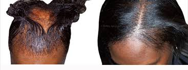 hairr styles for woman with alopica african american women hair loss african american female hair