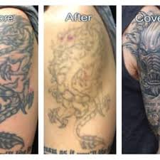 disappearing ink tattoo removal 106 nelbon ave pittsburgh pa