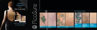 botox picosure laser tattoo removal winston salem nc liposuction