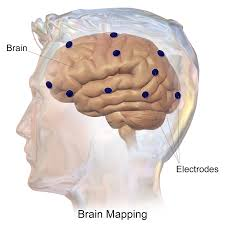 Brain Mapping File Blausen 0113 Brainmapping Electrodes Png Wikimedia Commons