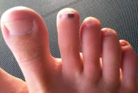 could a black spot under the toenail be fungus