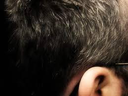 prurito testa e corpo brufoli in testa cosa fare per i frufoli in testa con o senza
