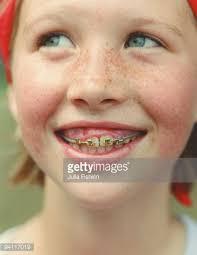 Braces Meme - awesome braces meme girl girl with braces photo ty images kayak