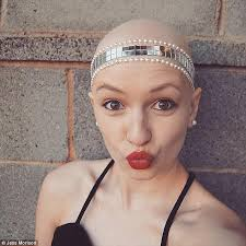 melbourne woman with alopecia opens up about hair loss daily