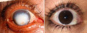 Map Dot Dystrophy Doctor Eye Institute Diseases And Disorders Of The Cornea