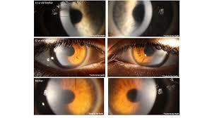Map Dot Dystrophy Facebook Cases Centre For Eye Health