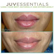 if you have discoloration or uneven color in your lips a lip