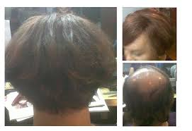 hairstyles for women with alopecia custom hair replacement systems and toupees for men and women with