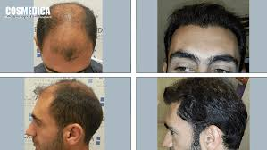 hair transplant america cosmedica hair transplant cost turkey hairsite com