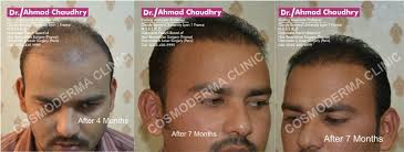 hair transplant in the philppines cost fue hair transplant clinic lahore pakistan dr ahmad