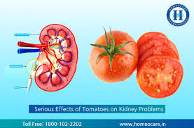 5 serious effects of tomatoes on kidney problems