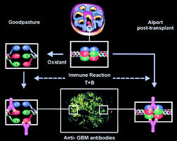 the molecular basis of goodpasture and alport syndromes beacons
