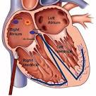 of a <b>catheter ablation</b>