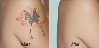 how many laser tattoo removal sessions to completely remove a tattoo