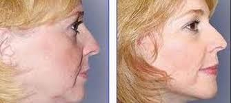 best hairstyles for sagging jowls sagging jowls what is the best treatment for saggy jowls