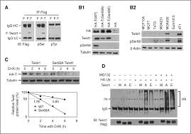 Breast Cancer Flags Phosphorylation Of Serine 68 Of Twist1 By Mapks Stabilizes Twist1