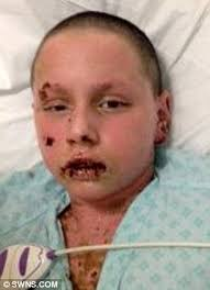 boy nearly killed by a dose of ibuprofen allergy left him covered