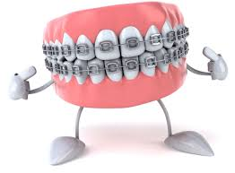Bridge Dental Cost Estimate by Braces Estimate Cost Bridge Dental Crown And Implant Tooth Of