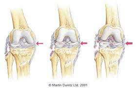 Anatomy Of Knee Injuries Lcl Knee Ligament Injury Lcl Sprain In Depth Knee Physioroom Com