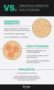 seborrheic dermatitis causes 7 natural treatments dr axe