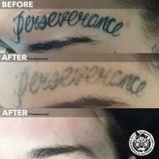mj driver laser tattoo removal tattoo removal 4 peel st