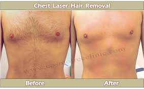 how much does laser hair removal cost on back laser hair removal cost permanent hair removal cost full body hair