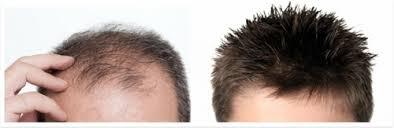 hair bonding hair bonding in malviya nagar new delhi phc the planet of hair