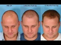 home remedies for hair loss for over 50 is there any solution for hair loss quora