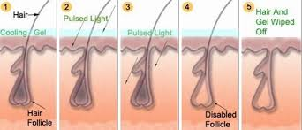 how much does laser hair removal cost on back laser hair removal in india mumbai bombay delhi permanent hair