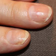 current concepts in treating psoriatic nails podiatry today