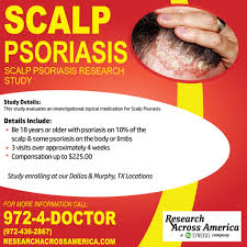scalp psoriasis clinical research study dallas u0026 murphy tx