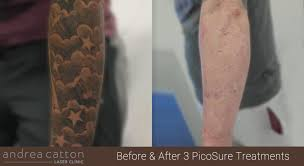 picosure laser tattoo removal uk best tattoo 2017