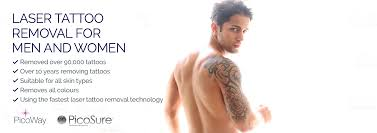 tattoo removal london laser tattoo removal central london removed over 90 000 tattoos