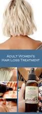 Women Hair Loss Treatment Best 10 Hair Loss Treatment Ideas On Pinterest Grow Hair